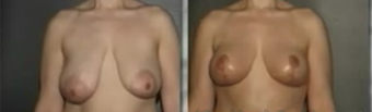 Breast Lift / Mastoplexy before 92222