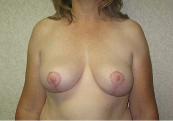 Breast reduction with Liposuction after 142400