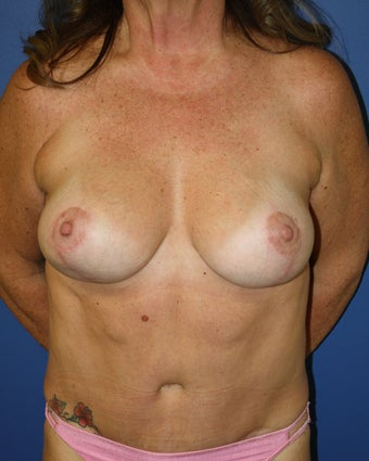 Bilateral breast augmentation with mastopexies after 404094