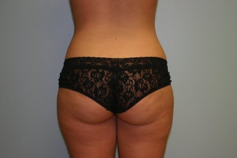Buttock Augmentation (Fat Transfer) before 299603