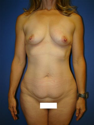 Extended Tummy Tuck and Breast Implants before 134340