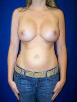 Revision Breast Surgery after 113019