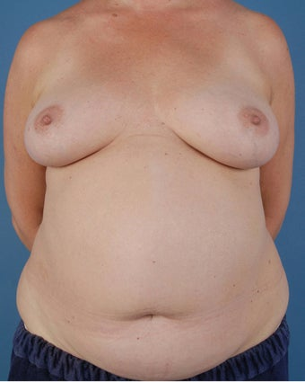 Breast Reconstruction before 509615