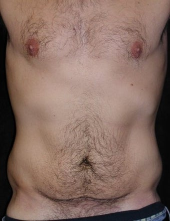 Male tummy Tuck, Flank Liposuction, Male Breast Reduction before 578158