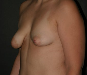 Breast Augmentation/ Reconstruction 307228