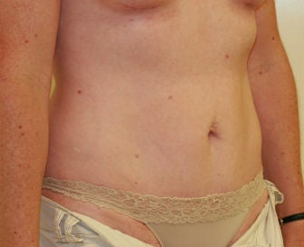 Mini-abdominoplasty 493674