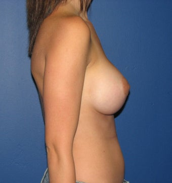Breast Augmentation 575297