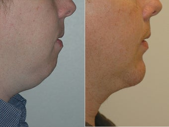Chin Augmentation  before 472206