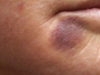 V Beam treatment of a bruise before 486833