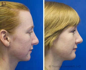 Revision Rhinoplasty, Chin Implantation, Mole Excision after 234398