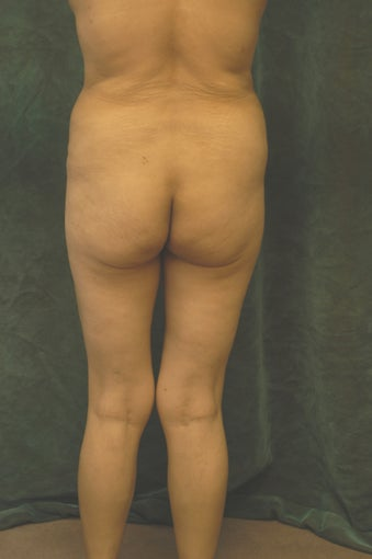 Women's Buttocks Augmentation 518115