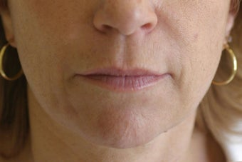 Lip Augmentation with Silicone before 101600
