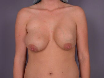 Breast Lift / Breast Augmentation  before 291015
