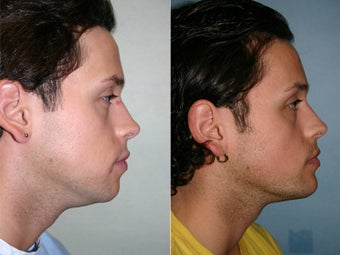 chin augmentation before 311837