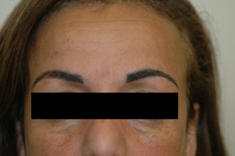 Permanent Makeup Removal Los Angeles Before and After Pictures before 641717