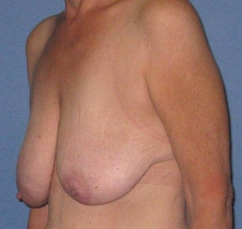 Breast lift without implants before 202160