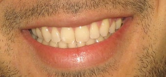 Braces used to correct crowding and bite after 346385