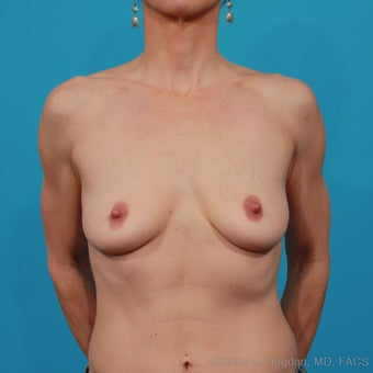 Breast Augmentation before 478543
