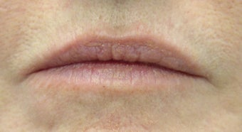 Juvederm and Botox to lips before 240185