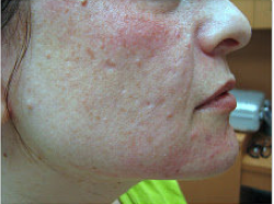 Fractional laser used to treat acne scars