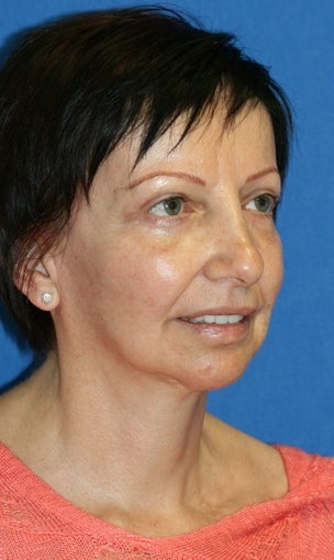 Facelift, Fat Transfer, Upper Bleph, Lower Eyelid Skin Pinch after 519865