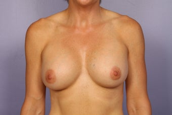 Breast Implants  after 309697