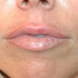 Uneven Lips Before and After Restylane before 179159