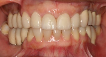 Smile makeover/ Full mouth reconstruction 317154