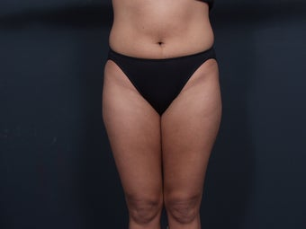 Liposuction before 462488