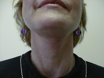 Neck lift after 593722