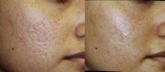 Acne scar after 182792