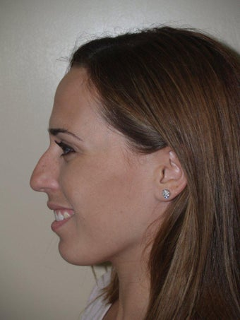 Rhinoplasty before 229058