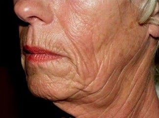 Sculptra Treatment before 370550