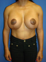 Revisionary Breast Surgery after 119399