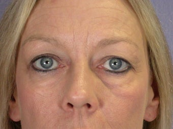 Eyelid Surgery before 306429