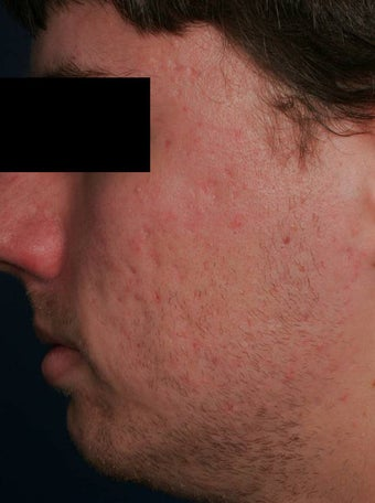 Fraxel - acne scars before 136199