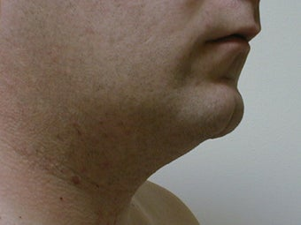 Liposuction of neck/chin area 590914