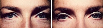 Blepharoplasty-Mid-Face before 285044