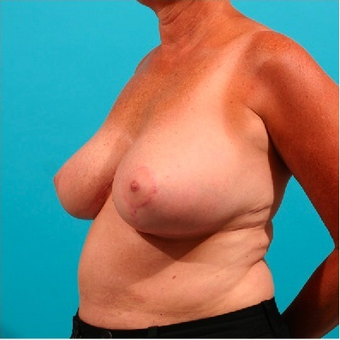 Breast Reduction 55105