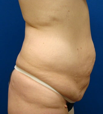 Tummy Tuck before 240132
