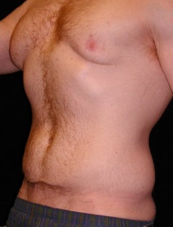 Male Tummy Tuck, Flank Liposuction, Male Breast Reduction 550017