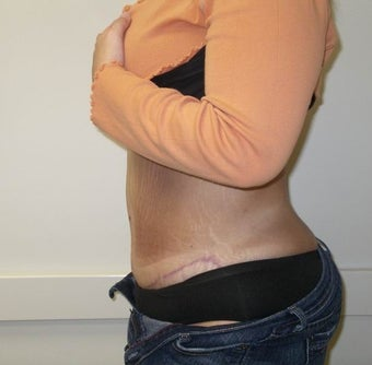 Abdominoplasty and Liposuction after massive weight loss 615720