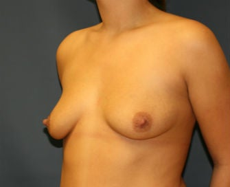 Breast Augmentation before 568967