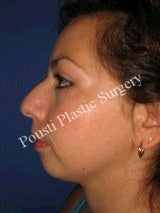 Chin Implants, Nose Surgery (Rhinoplasty) before 622588