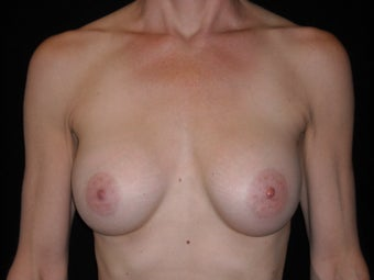 Breast augmentation after 381904