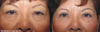 Asian Double Fold Eyelid Surgery before 376856