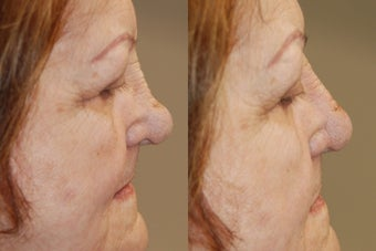 Non-Surgical Rhinoplasty using Silikon-1000 before 184867