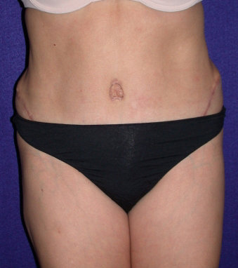 Tummy Tuck (abdominoplasty) after 208480