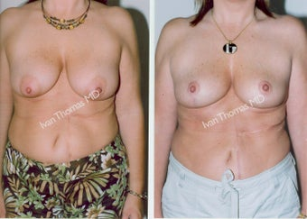 Mastopexy-Breast Lift before 243723