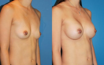 Breast Augmentation after 310716